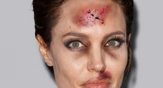 Celebridades apanham em campanha de artista contra viol�ncia dom�stica.